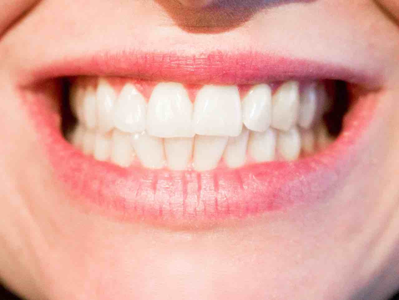 Le Bruxisme aussi appelé grincement des dents