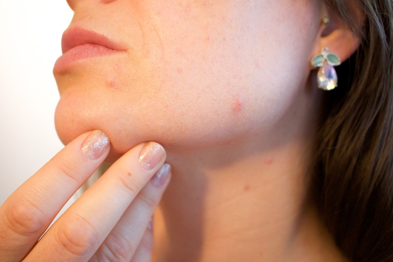 Dermite séborrhéique : causes, symptômes et traitements