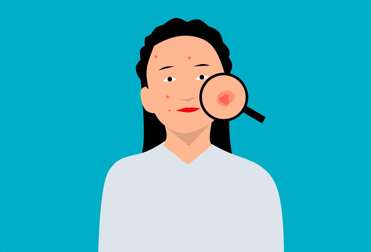 Jeune femme avec quelques boutons d'acné